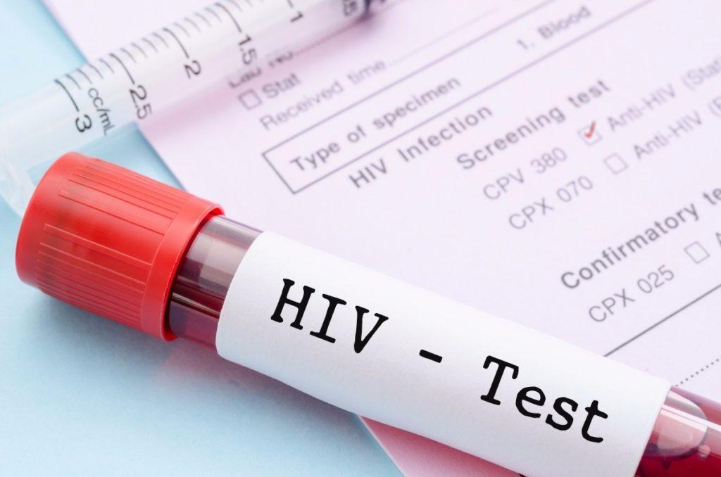 SIMÃO DIAS: MUNICÍPIO CONTABILIZA 63 CASOS DE HIV/AIDS